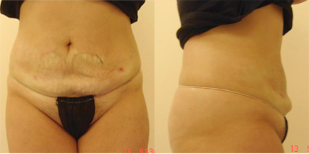 Female After Liposuction