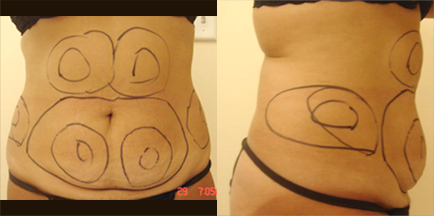 Female Before Liposuction