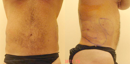 Male After Liposuction